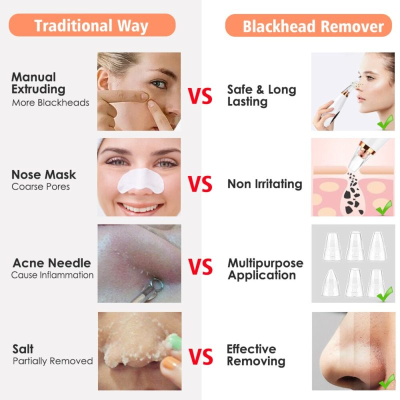 PREMIUM POWERFUL VACUUM BLACKHEADS REMOVER
